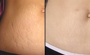 Fractional-Laser-for-Stretch-Marks-Treatment