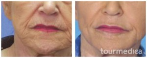fractional-laser-skin-lift-wrinkle-treatment-scar-removal-hyperpigmentation-treatment-before-and-after_14025_800x500