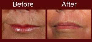 fractional-laser-skin-resurfacing-004