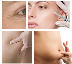 mesotherapy (1)