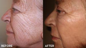 mixto-laser-resurfacing-louise-ba