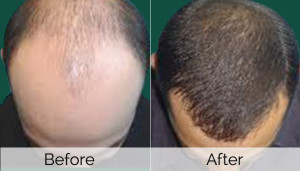 mesotherapy-hair