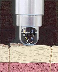 mikrodermabrazja_2