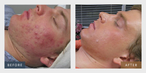 skin_trifecta_before_and_after