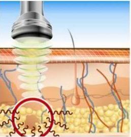 ultrasoniczne-rozbijanie-tkanki