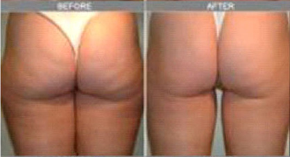 ultrasound-cavitation-before-after4