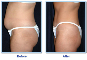 Laser-lipo-treatment-Before-and-After1