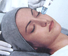 microdermabrasion example