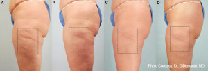 CELLULITE-TREATMENT-NYC