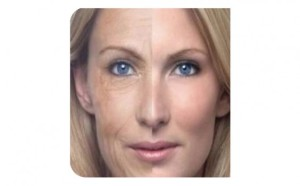 RF_Heating,_Natural_Beauty,_lipo,_hanley,_stoke-on-trent,_botox,_skin,_wrinkles,_fillers