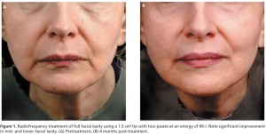 Radiofrequency-RF-Treatment-of-Facial-Laxity-Fisher-et-al-950x4791