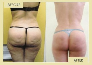 before-after-pictures-cellulite-reduction