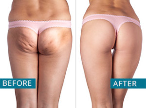 lipo-cavitation-radio-frequency-miami