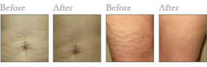 lipofirm-before-after-2